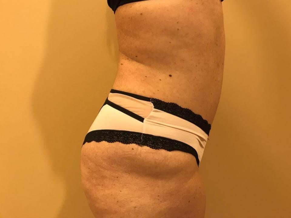 tummy tuck reviews before after